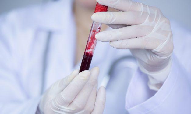 Potrzeba badania krwi